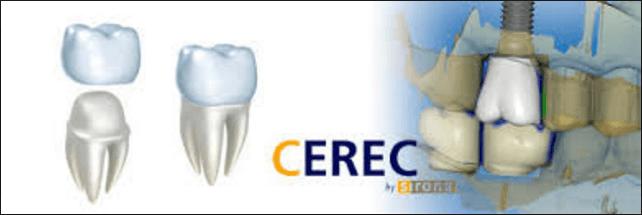 cerec-dental-crowns