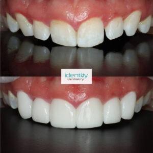 Porcelain Dental Veneers Before and After